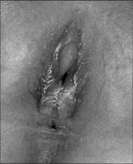 mozhno-masturbirovat-vo-vremya-lecheniya-ot-ureaplazmoza